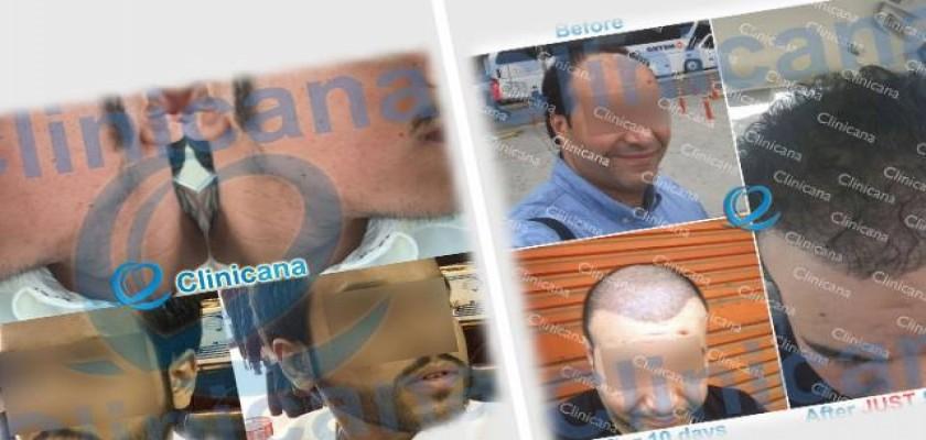 Cosmetic Transdermal Reconstruction Yöntemi Nedir?