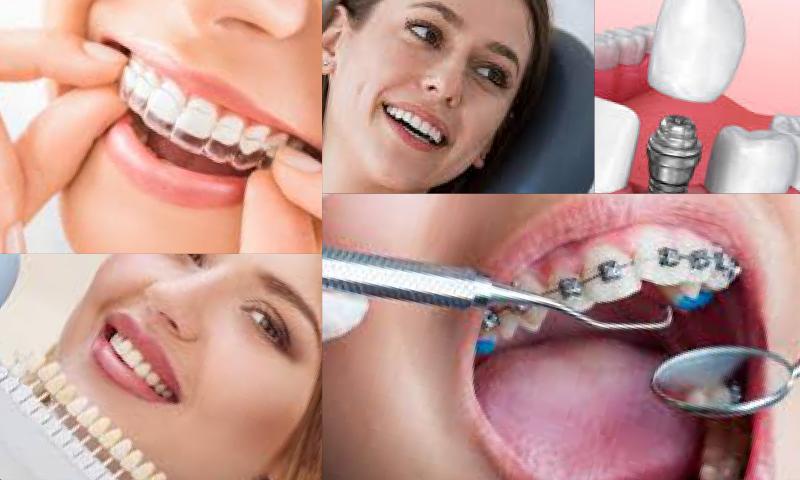 Dental Tedavilerde Kusursuz Hizmet