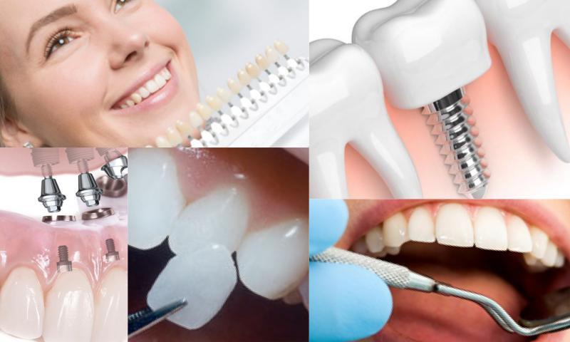 Diş Beyazlatmak İçin Ne Yapılmalı?